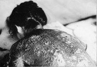尾糠政美「被爆した婦人の背中」1945年8月7日 広島平和記念資料館提供